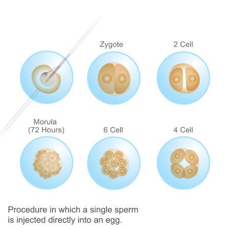 Process in which a single Sperm. Illustration Anatomy body Human. Illustration