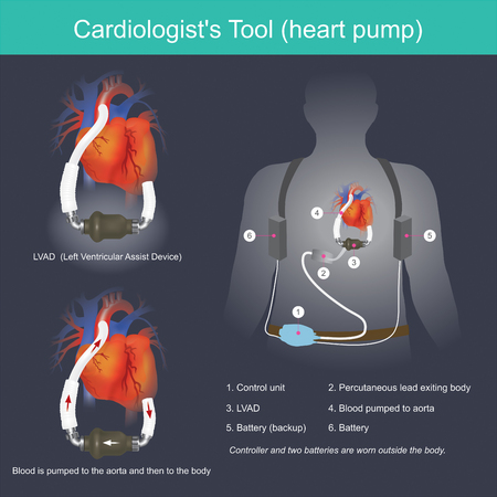 This electronic device is used to increase blood pressure from the heart to the aorta. Illustration
