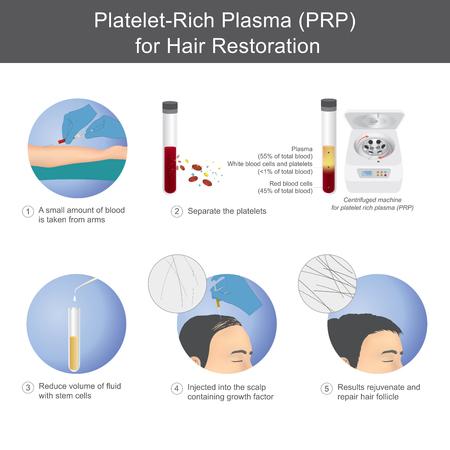 Estimulación del crecimiento del cabello mediante el uso de sangre de los destinatarios del servicio mediante el proceso de separación de plasma rico en plaquetas, para inyectar en el cuero cabelludo. Ilustración de vector