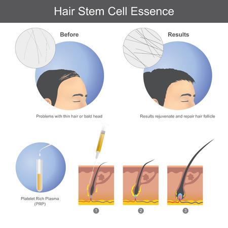 Stimulieren des Haarwachstums mit plättchenreichem Plasma (PRP), das auf die Kopfhaut injiziert wird, bis es bis zur Haarwurzel vordringt. Infografik Gesundheitsversorgung.