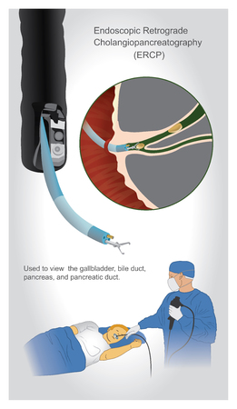 Endoscopic retrograde cholangiopancreatography (ERCP) is an investigation used to view and if necessary biopsy the gallbladder, bile duct, pancreas, and pancreatic duct. Ilustração