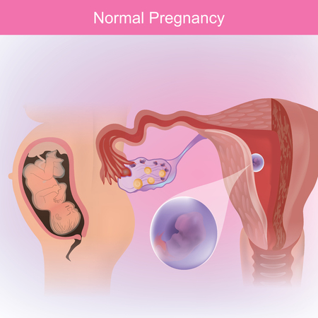 Normal course of an egg down through the fallopian tube and into the wall of the uterus.