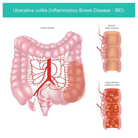 The ulcerative colitis caused by abnormal immune system usually affect only the inner layer of the bowel wall.