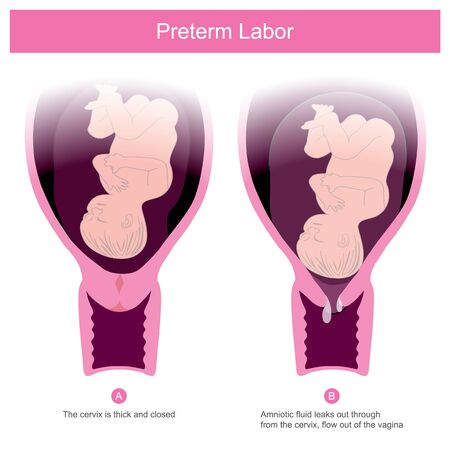 The premature birth, can occur in conditions of amniotic fluid leaks out through the cervix and flow out of the vagina Including other factors that make the cervix open.