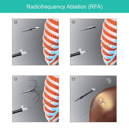Sample illustrations for the treatment of tumour  in human organs  using high frequency radio waves through an electrode. The heat from high frequency oscillation will cause the evaporation of the tissue and the wound is small.