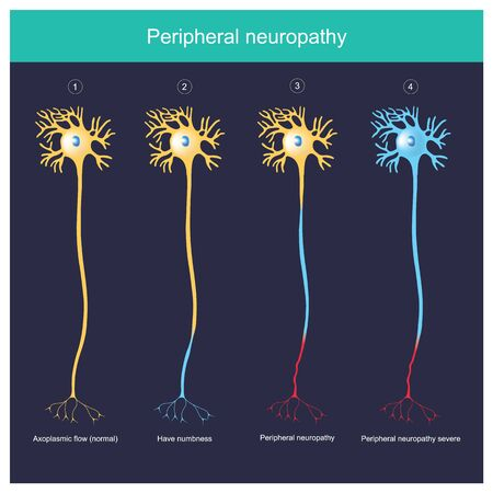 Neuropathie périphérique. Expliquez l'illustration pour La neuropathie périphérique a un engourdissement jusqu'à une inflammation sévère. Vecteurs