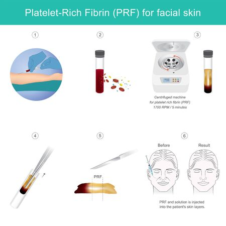 Platelet rich fibrin for facial skin. Illustration explain Technology treatment medical facial skin from stem cells for make anti-aging serum. Çizim