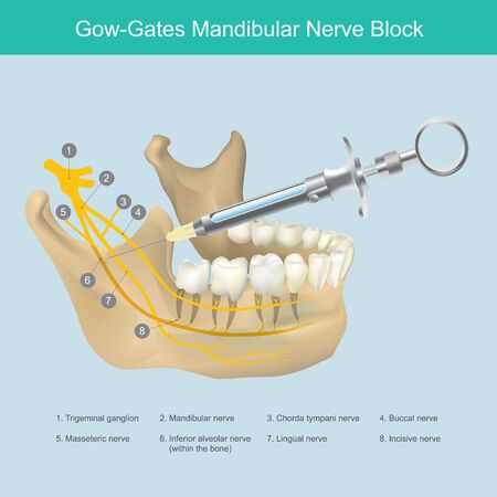 Mandibular Nerve Block. Illustration reference to Dentist the lower jaw area aesthetic just injection, to stop the pain from teeth nerves.