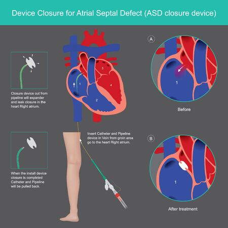 Devices Closure for Atrial Septal Defect. Explain treatment The Atrial Septal Defect (ASD) abnormality by use medical Devices Closure wall heart in Right atrium.  イラスト・ベクター素材