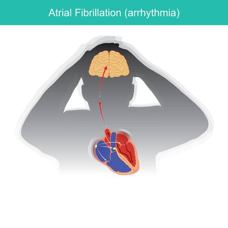 Atrial Fibrillation. Patients condition in which the electrical signals in heart malfunctioning or causing a short circuit in heart rhythm.