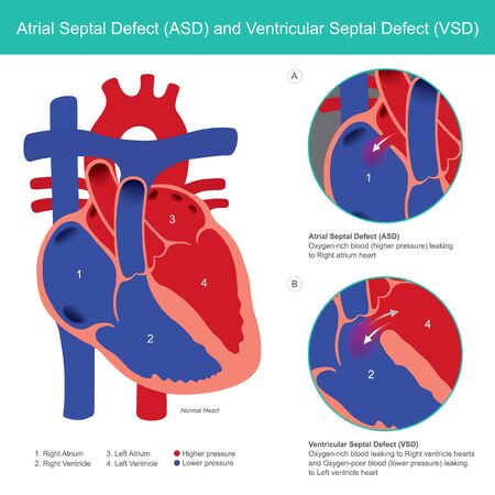 Atrial Septal Defect (ASD) and Ventricular Septal Defect (VSD). Abnormal of the heart atrial and heart ventricle from baby birth.