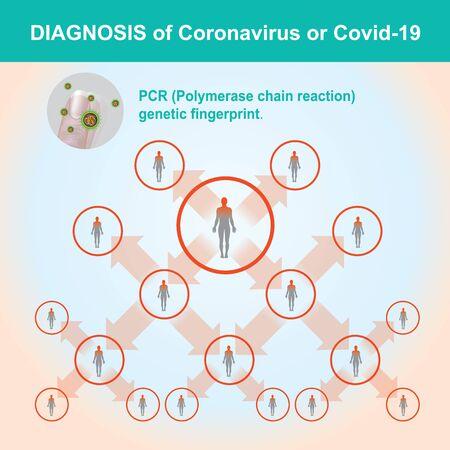 Diagnosis of Coronavirus or COVID-19. Illustration health care and medical.
