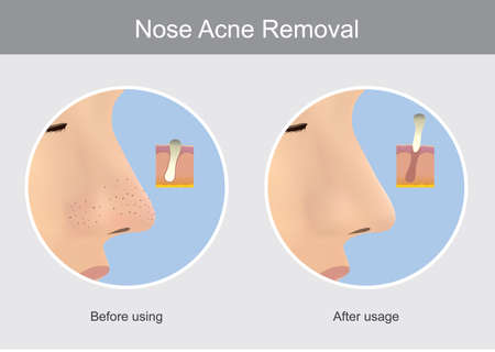 Nose Acne Removal. Illustration show human skin in case before using and after usage a products for the nose acne (blackhead) remover.