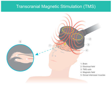 Transcranial Magnetic Stimulation (TMS). The brain stimulation in which a changing magnetic field is used to cause electric current. Healthcare and medical illustration. 矢量图像
