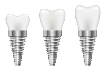 Tooth implant vector design illustration isolated on white background