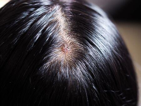Close-up van zwart haar van Aziaten met haar- en schimmelgezondheidsproblemen op de hoofdhuid. Met ontsteking van de huid en wond op het hoofd.
