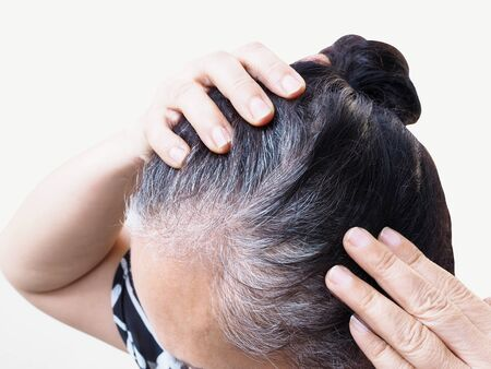 Thai elderly women with hair health problem with hair loss, thinning and colored white hair.