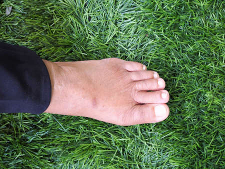 Inflammation and sore feet of Asian elderly, hurt with foot pain of disease