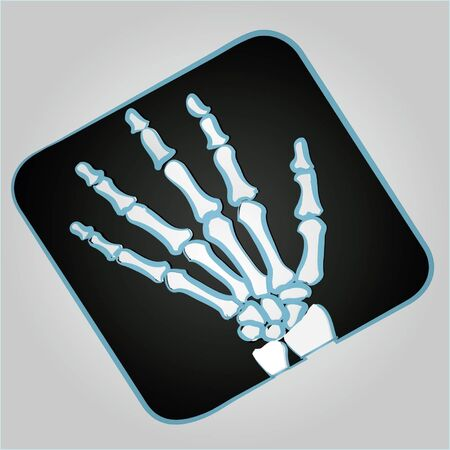 radiography: Hand radiograph with black background