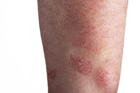 dermatologo: Psoriasi sul braccio Archivio Fotografico