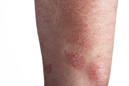 psoriasis: Psoriasis on the arm Stock Photo