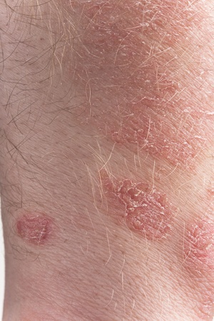 Psoriasis close-up  photo