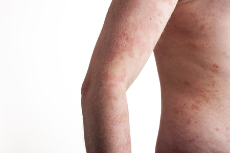 DERMATOLOGY: Psoriasis on the body Stock Photo
