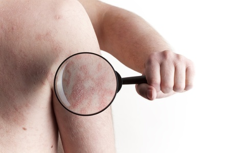 DERMATOLOGY: Medical Exam - Psoriasis