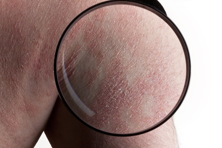 psoriasis: Psoriasis medical exam Stock Photo