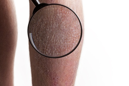 psoriasis: Medical Exam - Psoriasis on legs