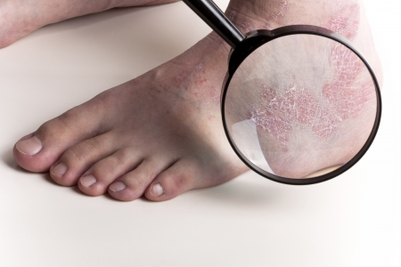 psoriasis: Medical Exam on Foot Stock Photo