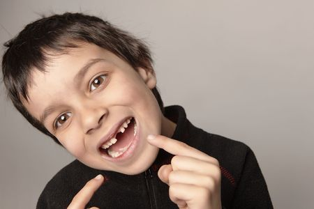 young boy showing is teeth.