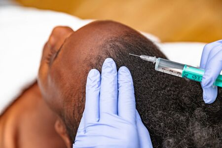 Doctor aesthetician with blue medical gloves makes hyaluronic acid rejuvenation beauty injections in the back of the head of female patient for hair growth, and to prevent boldness Stock Photo