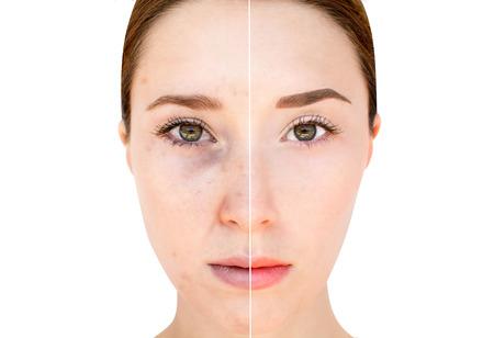 mujer bonita: Womans cara antes y despu�s del maquillaje y edici�n digital