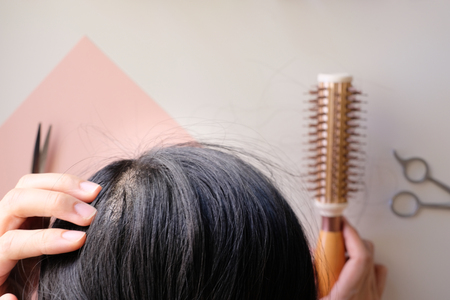 hair fall and lost alopecia woman problem on the comb.