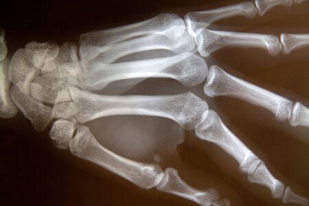 broken wrist: Detalle de una radiograf�a de la mano