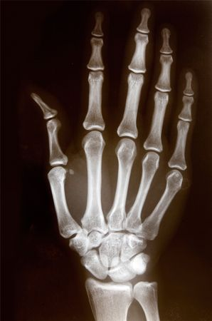 thumb x ray: Detail of an x-ray of a hand