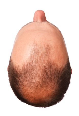 above head: Top of a mans head with male pattern baldness, isolated on  a white background
