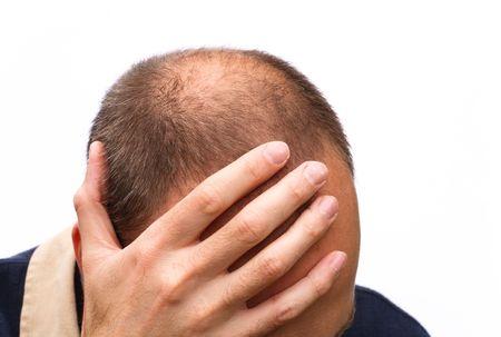 calvitie: Homme exprimant le stress, la pr�occupation ou la d�pression ; isol� sur un fond blanc