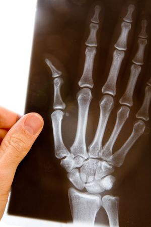 fractures: A male doctor holds up an x-ray of a hand to examine it
