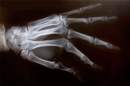 cut wrist: Detail of an x-ray of a hand