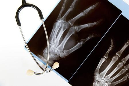 thumb x ray: An x-ray of a hand with a stethoscope isolated on white Stock Photo