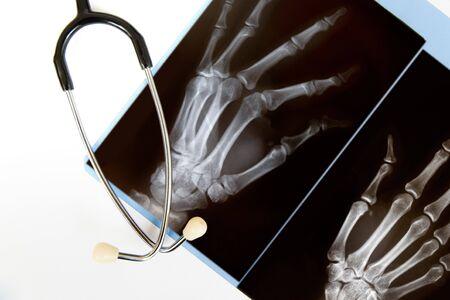 broken wrist: Una radiograf�a de una mano con un estetoscopio aislado en blanco  Foto de archivo