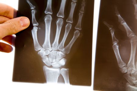 A male doctor holds up an x-ray of a hand to examine it photo