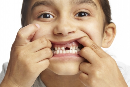 sweet tooth: Young girl with missing front tooth on white background