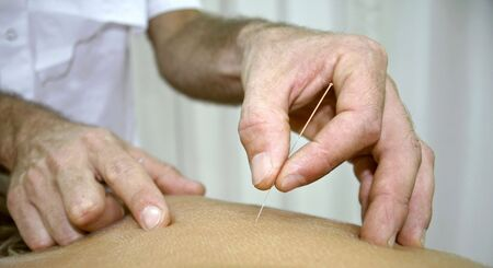 acupuntura china: tratamiento de medicina china