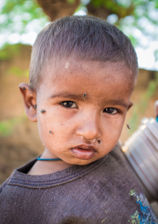 snotty: GODWAR REGION, INDIA - 15 FEBRUARY 2015: Young Indian child with flies around face. Editorial