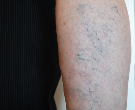 closeup of old man's leg with capillary mesh which cause varicose veins Imagens