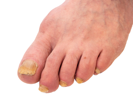 closeup of man foot with nail fungus. surface is diseased and have unnatural yellow color. image isolated cutout on white background