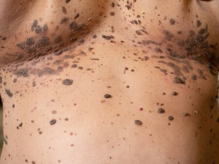 close-up many large big brown nevus on human chest skin body